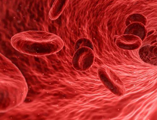 Colesterol elevado: ¿qué debo hacer?
